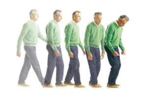 Cos'è la malattia di Parkinson