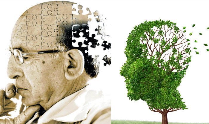 Alzheimer, farmaco fa scomparire placche al cervello in un anno